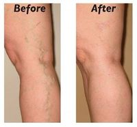 How to Cure and Prevent Varicose Veins Naturally | Nutriclue